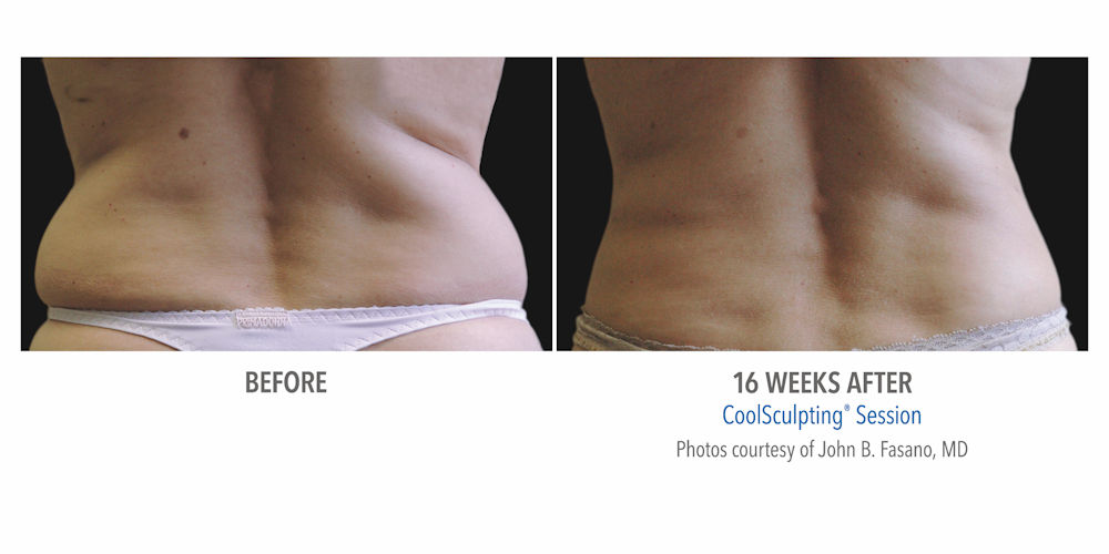 CoolSculpting impact on Flanks, or Lovehandles
