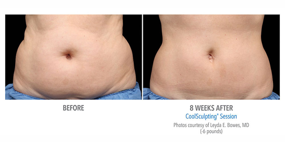 CoolSculpting impact on Tummy and Abdomen