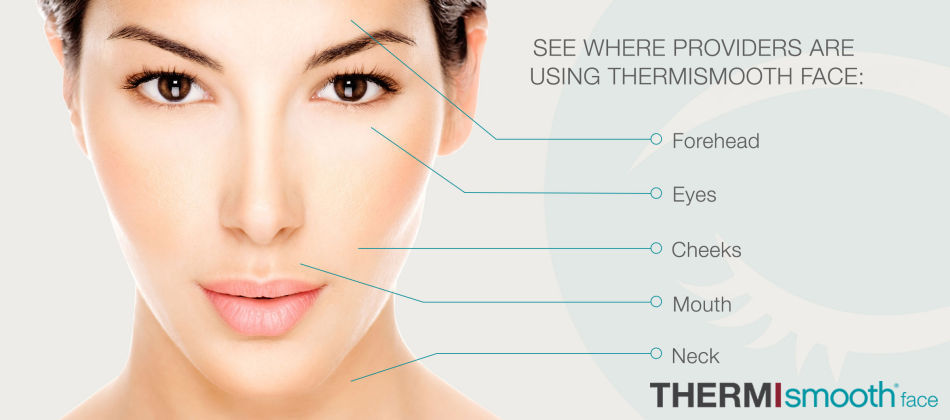 ThermiSmooth Face by Aesthetic Gynecology Specialists of WNY